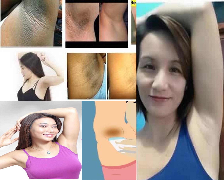 underarm skin care